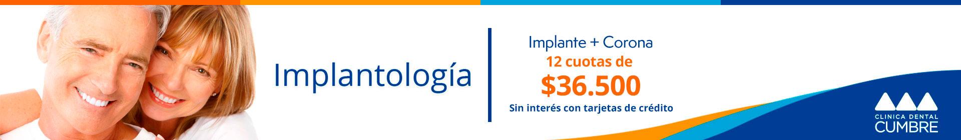 interna-implantologia-2